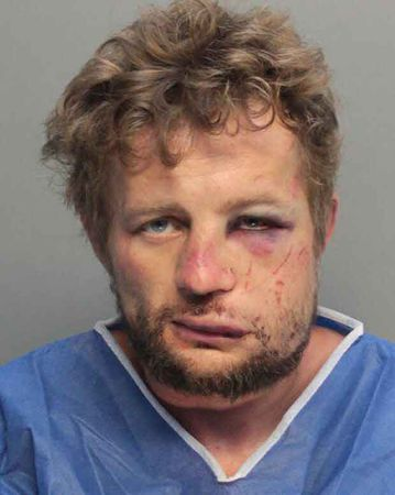 Mark Katsnelson, 35, was treated for his injuries at a hospital after the victim he is alleged to have randomly attacked fought back.