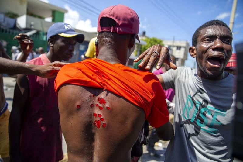 Un manifestante muestra las heridas que le causaron balas de goma disparadas por la polica para dispersar a los manifestantes que exigen la renuncia del presidente Jovenel Mose en Puerto Prncipe, Hait, el sbado 17 de octubre de 2020. (AP Foto/Dieu Nalio Chery)