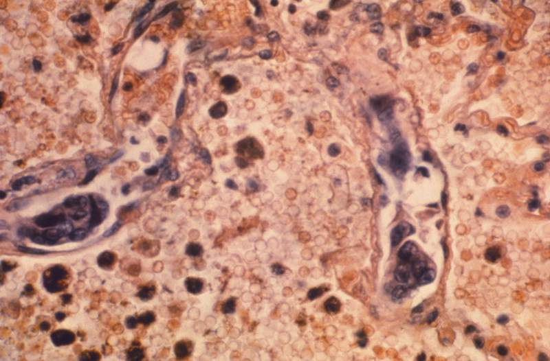 FILE - This 1964 photo made available by the Centers for Disease Control and Prevention shows a lung tissue specimen from a patient with adenocarcinoma of the lung. On Tuesday, Jan. 12, 2021, researchers reported another record one-year decline in the U.S. cancer death rate, a drop they continue to attribute to success against lung cancer. (Dr. Ellis/Emory University, Department of Pathology/CDC via AP)