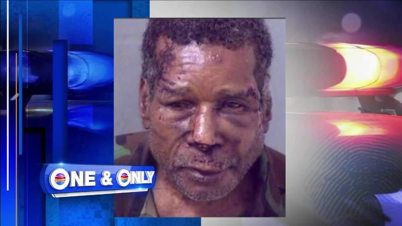 Man alleges officers beat him up during unwarranted arrest