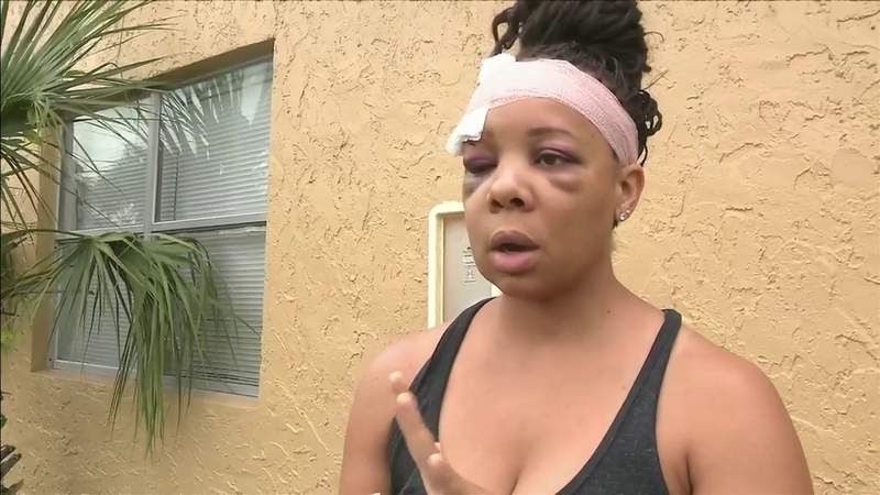 Police brutality protesters denounce Fort Lauderdale officers' violence