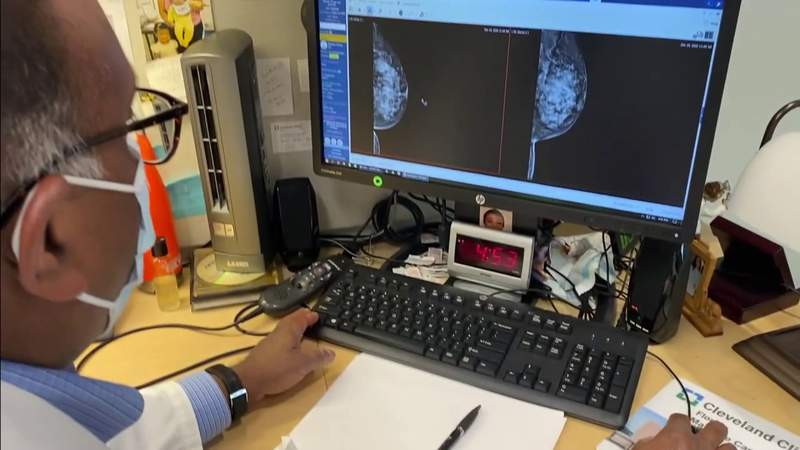 Research now showing different treatment options for triple negative breast cancers