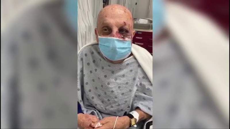 74-year-old man most recent victim of beating on Miami Metromover