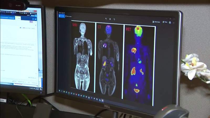 Health officials announce new lung cancer screening guidelines