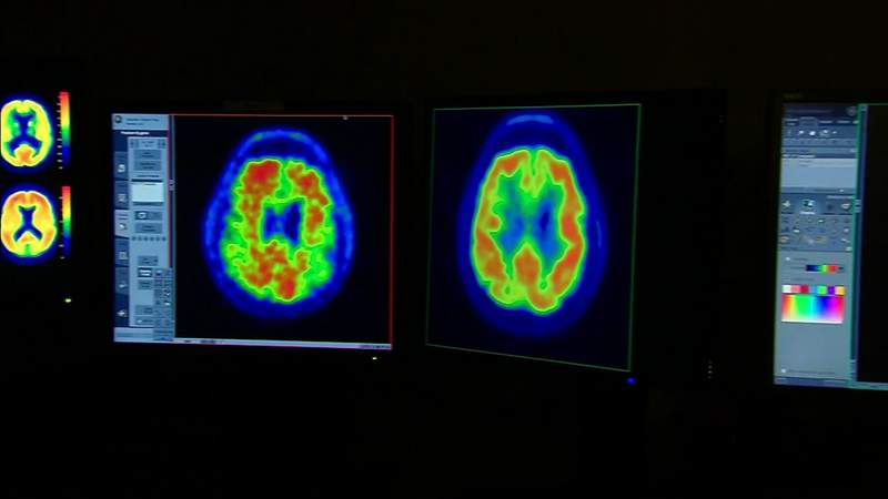 Experts weigh in on newly approved Alzheimer's drug